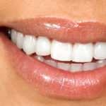 Стоматологическая клиника «Виал» основа красивой улыбки