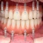Протезирование зубов при их тотальном отсутствии
